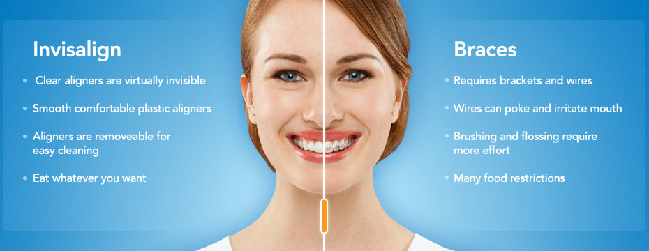invialign-vs-braces_sm