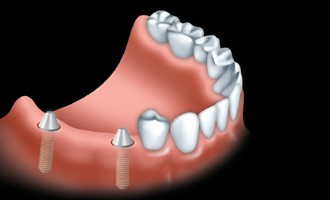 A fixed bridge is anchored to dental implants to replace one or more teeth.