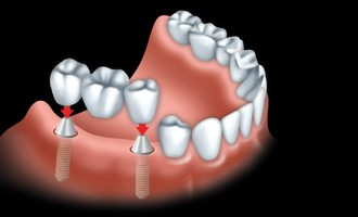 A fixed bridge is anchored to dental implants to replace all teeth.